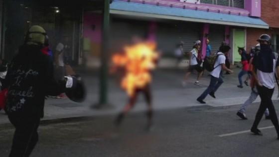 ผู้ประท้วงขับไล่รัฐบาลเวเนซุเอลาถูกฝ่ายตรงข้ามจุดไฟเผา...