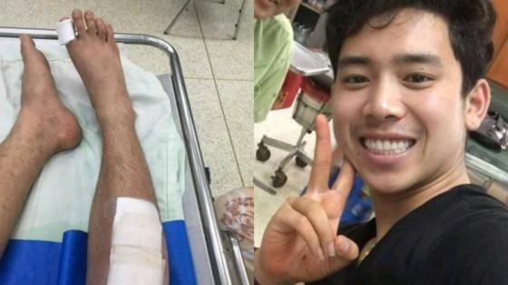 ฟาดเคราะห์แรง!! เบิ้ล ปทุมราช เกิดอุบัติเหตุ ขับมอเตอร์ไซค์ล้ม ขา กระแทกพื้น เลือดไหลอาบ แพทย์รอดูอาการ