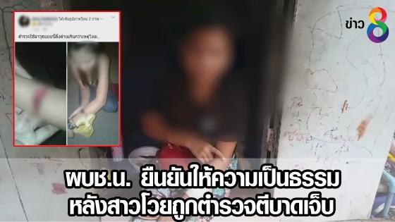 ผบช.น. ยืนยันให้ความเป็นธรรม หลังสาวโวยถูกตำรวจตีบาดเจ็บ
