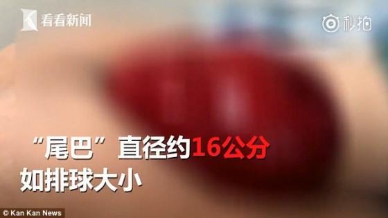 ช็อก หนุ่มจีนไส้หลุดหลังติดเกมนั่งเล่นขณะเข้าห้องน้ำ(คลิป)