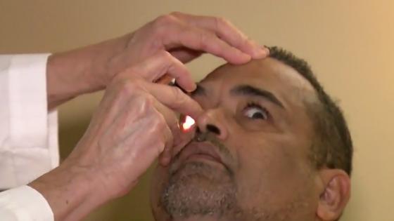 สยอง! แพทย์ช่วยดึงตัวตืดหมูออกจากดวงตาชายอเมริกันได้ทัน ก่อนไชขึ้นไปบนสมอง...
