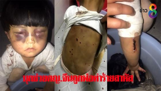 สะเทือนใจ! บุกช่วยเด็กหญิงจีนถูกพ่อติดสุราทำร้ายสาหัส