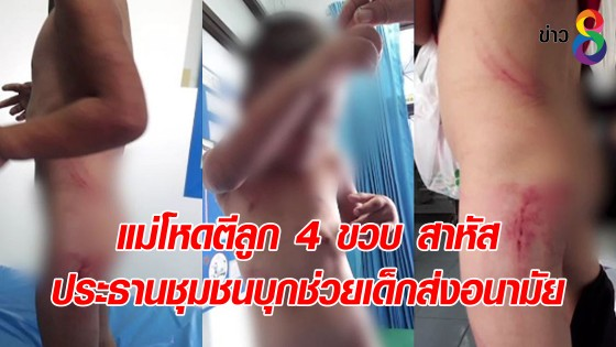 แม่โหดตีลูก 4 ขวบ สาหัส ประธานชุมชนบุกช่วยเด็กส่งอนามัย