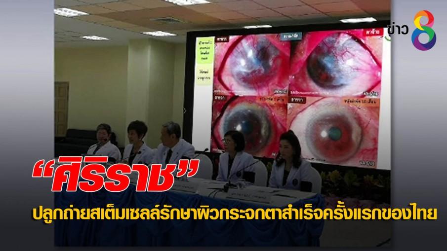 """""""ศิริราช"""" ปลูกถ่ายสเต็มเซลล์รักษาผิวกระจกตาสำเร็จครั้งแรกของไทย"""