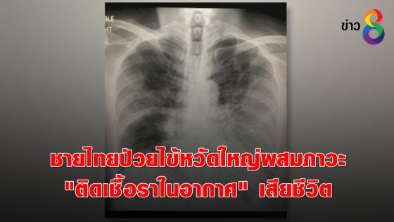 """ชายไทยป่วยไข้หวัดใหญ่ผสมภาวะ """"ติดเชื้อราในอากาศ""""..."""