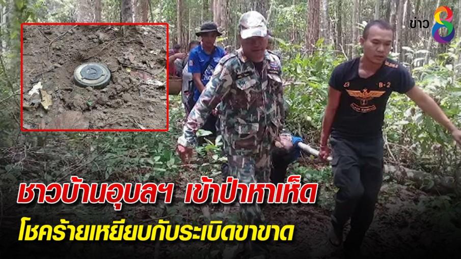 ชาวบ้านอุบลฯ เข้าป่าหาเห็ด โชคร้ายเหยียบกับระเบิดขาขาด