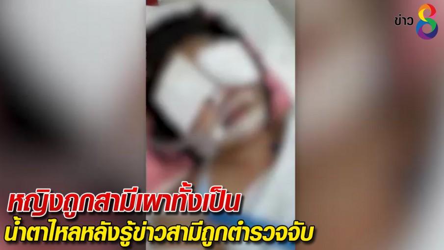 หญิงถูกสามีเผาทั้งเป็น น้ำตาไหลหลังรู้ข่าวสามีถูกตำรวจจับ