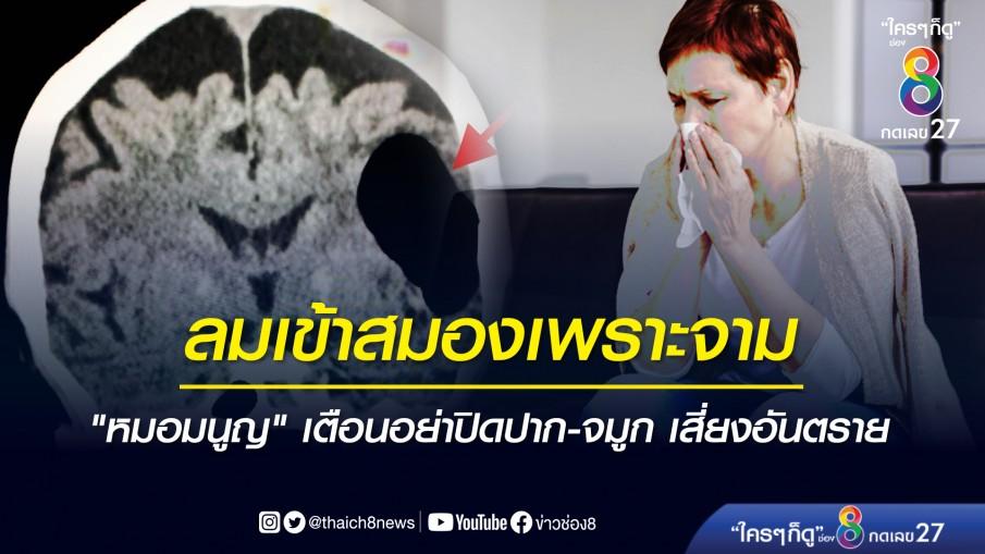 อันตราย! คุณยายวัย 85 ปี ใช้มือปิดปากขณะจาม ลมเข้าสมอง